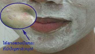 acne care2