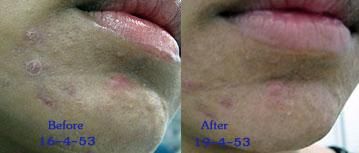 acne care3